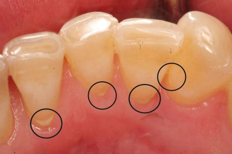 Cao răng bám chặt ở chân răng