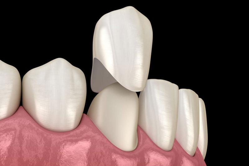 Kỹ thuật bọc răng sứ được thực hiện nhanh chóng