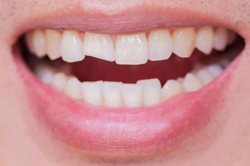 Bọc răng sứ khắc phục các khiếm khuyết trên răng