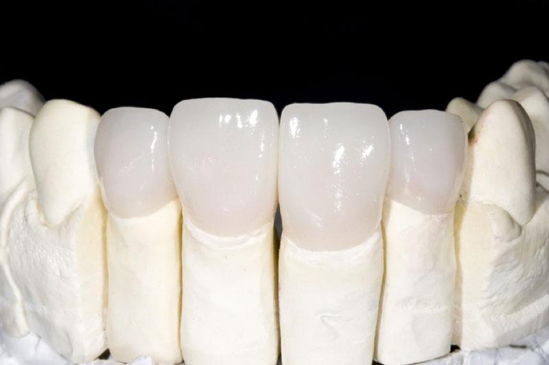 Răng sứ toàn sứ có độ trắng trong tự nhiên nên đạt tính thẩm mỹ cao
