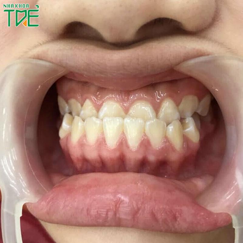 Bọc răng sứ khớp cắn ngược có hiệu quả không?