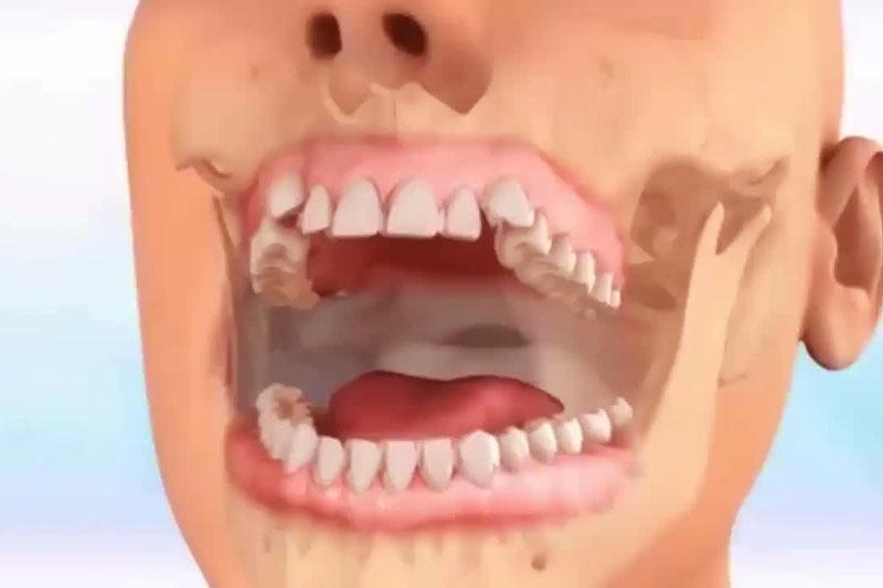 Khớp cắn ngược ảnh hưởng đến hoạt động của khớp hàm