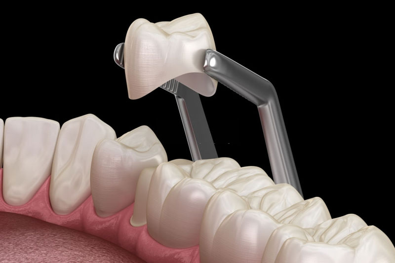 Bọc răng sứ khớp cắn ngược có hiệu quả trong trường hợp nhẹ