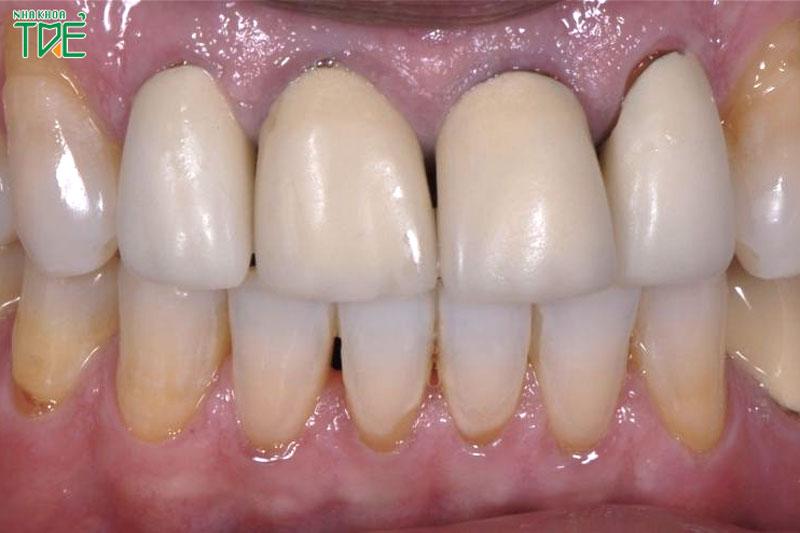 Cầu răng sứ bị hở là do đâu? Cách khắc phục cầu răng sứ bị hở