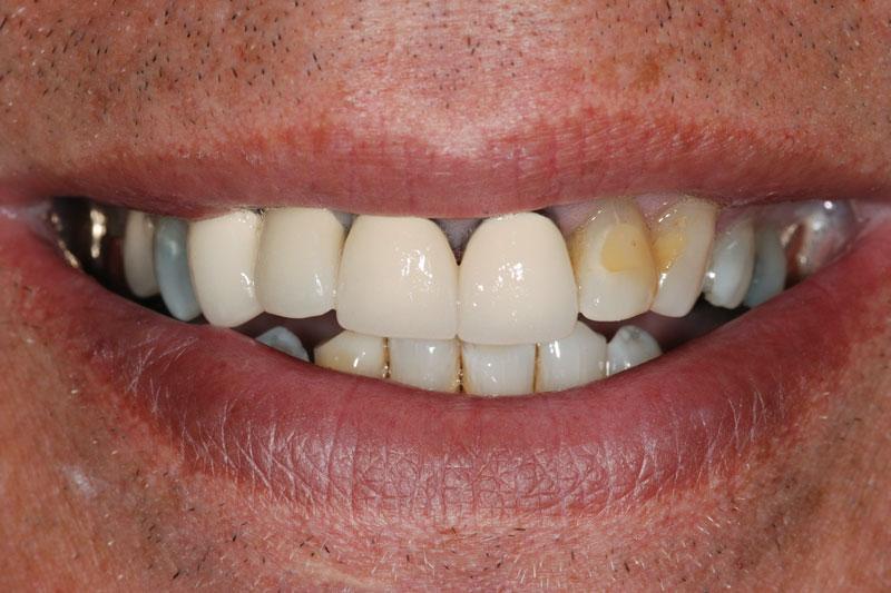 Cầu răng sứ bị hở biểu hiện trên bề mặt của răng