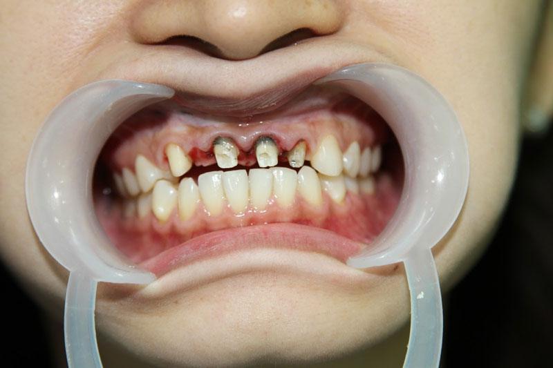 Cầu răng sứ hở có nguy cơ làm hỏng răng thật