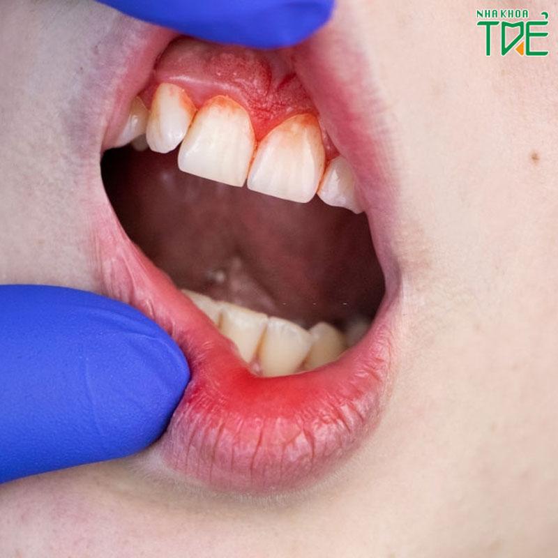 Chảy máu chân răng ở trẻ là biểu hiện của bệnh gì?