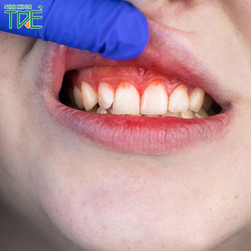 Chảy máu chân răng thiếu chất gì?