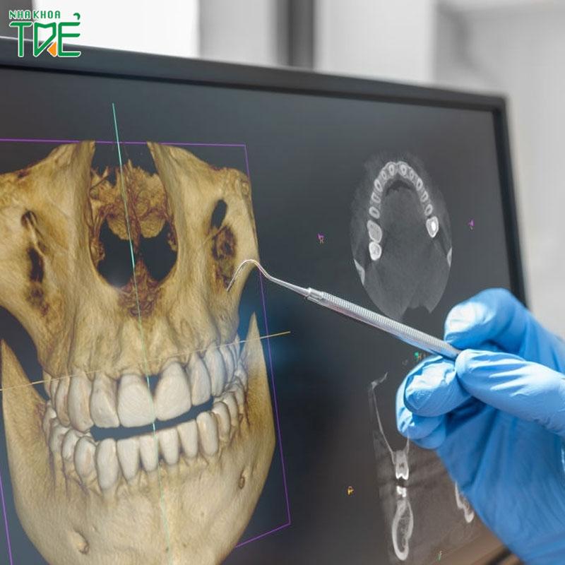 Chụp X-quang răng cho bé: Những vấn đề mà bố mẹ cần lưu ý