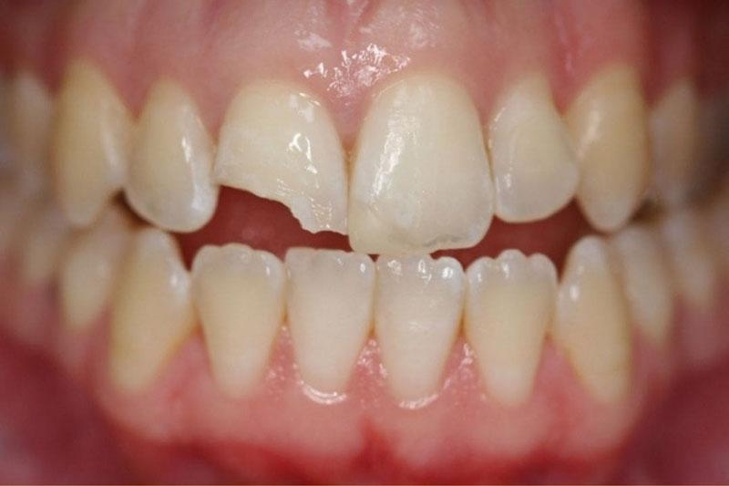 Lấy tủy răng cửa khi răng sứt mẻ vào đến tủy răng