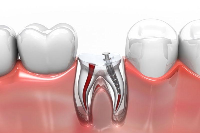 Lấy tủy răng xong vẫn đau do còn sót tủy viêm, hoại tử