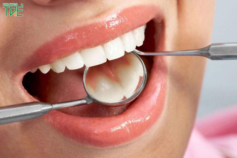 Lưu ý khi trồng răng sứ giúp tăng tuổi thọ cho răng