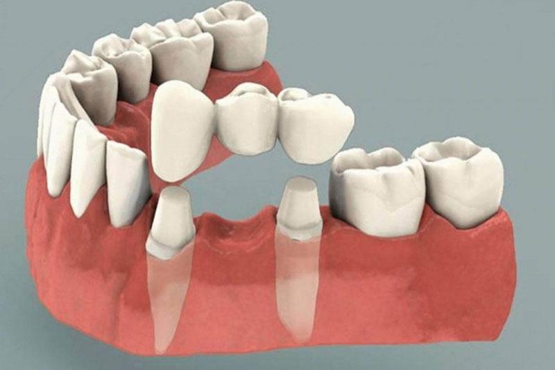 Trồng răng sứ phục hình răng bị mất hiệu quả