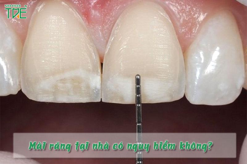 Mài răng tại nhà có gây nguy hiểm không?