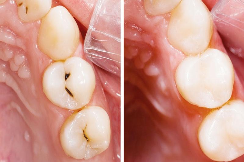 Trám răng ngăn ngừa sâu răng ở trẻ hiệu quả