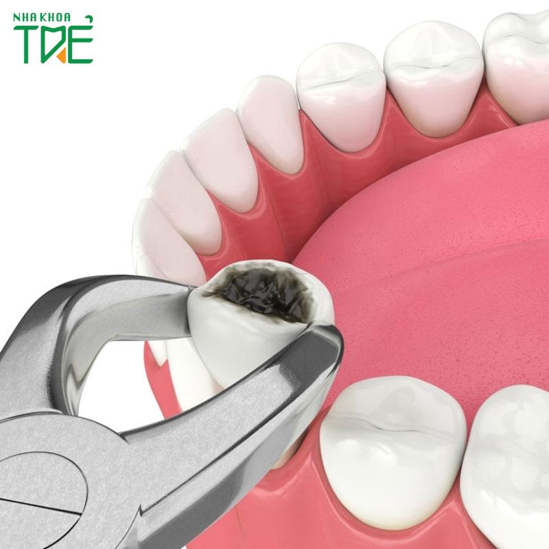 Nhổ răng hàm dưới có nguy hiểm không?