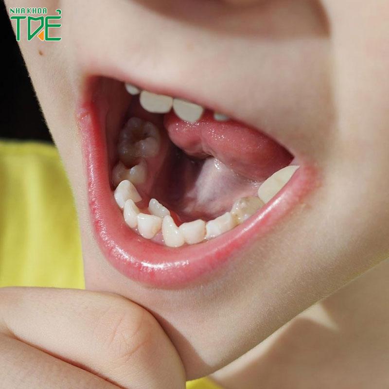 Nhổ răng mọc dư thừa có nguy hiểm không?