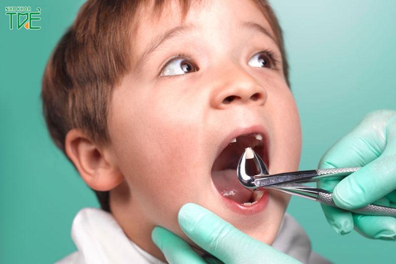 Nhổ răng sữa cho trẻ bao nhiêu tiền?