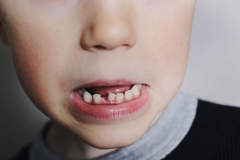 Mất răng sữa sớm làm các răng khác bị xô lệch