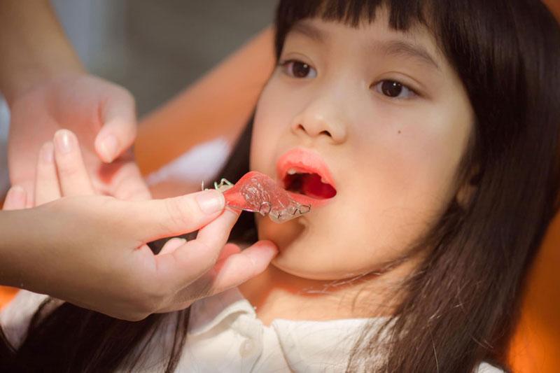 Nên chỉnh nha trẻ em ngay từ giai đoạn thay răng sữa