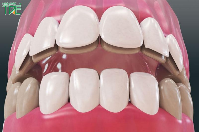 Quy trình dán răng sứ Veneer chuẩn quốc tế diễn ra như thế nào?