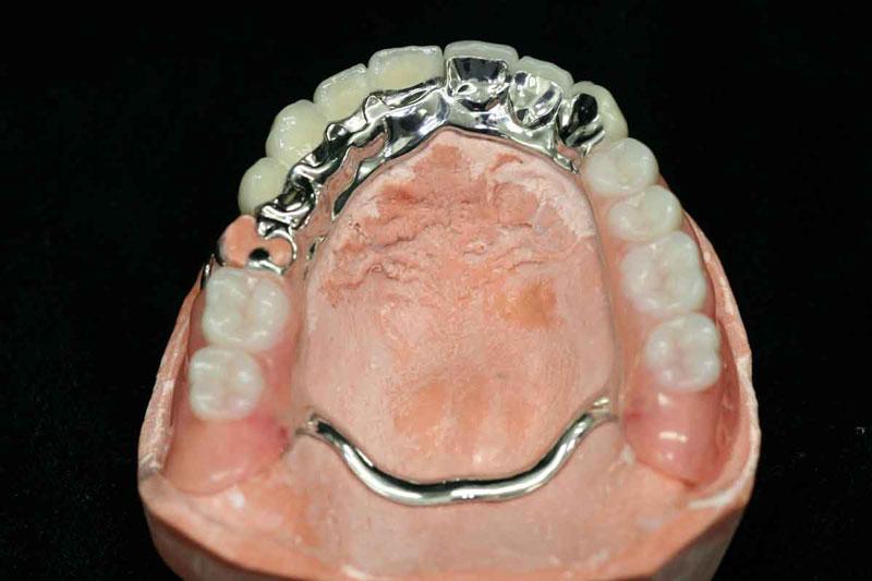 Răng giả tháo lắp bán phần cho trường hợp mất nhiều răng
