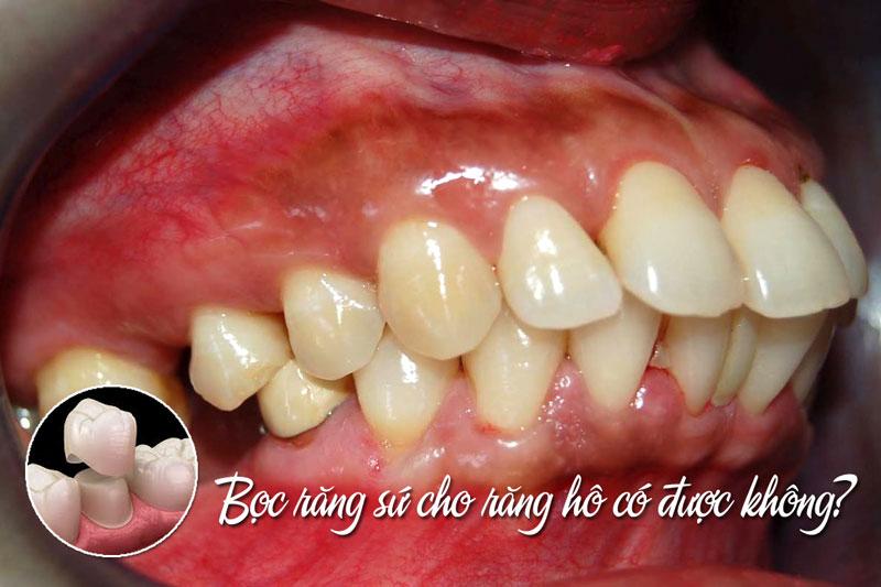 Răng hô có bọc sứ được không?