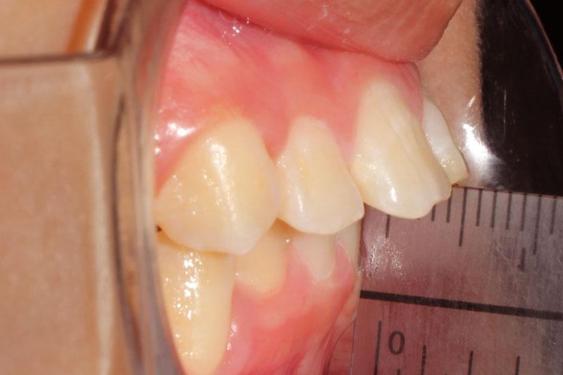 Răng hô là các răng hàm trên chìa ra quá mức