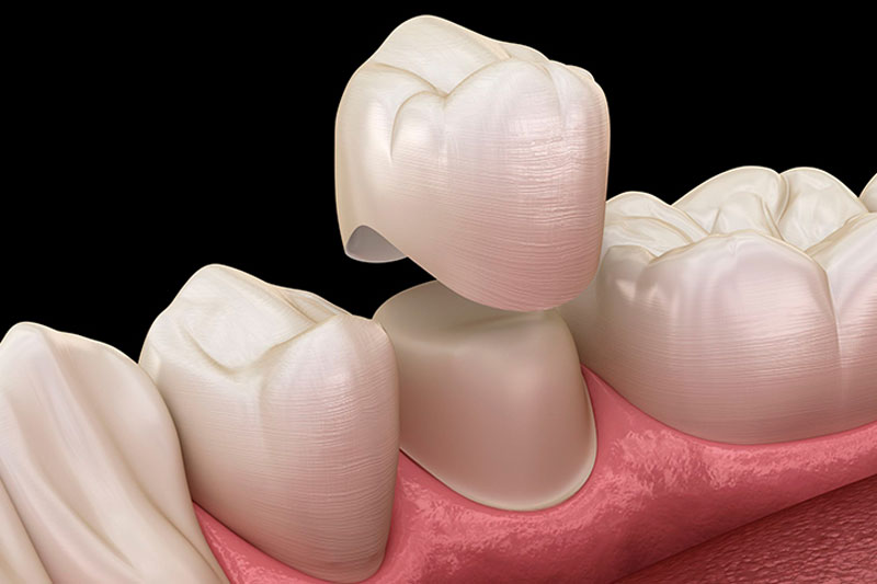 Bọc răng sứ cần tiến hành mài răng thật