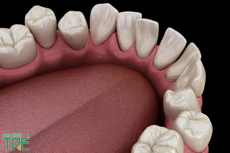Răng khấp khểnh nhiều có bọc sứ được không?