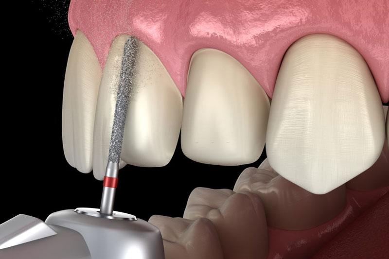Bọc răng sứ phải mài men răng thật
