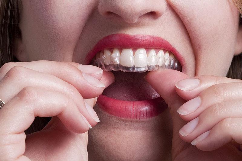 Niềng răng trong suốt đạt tính thẩm mỹ cao