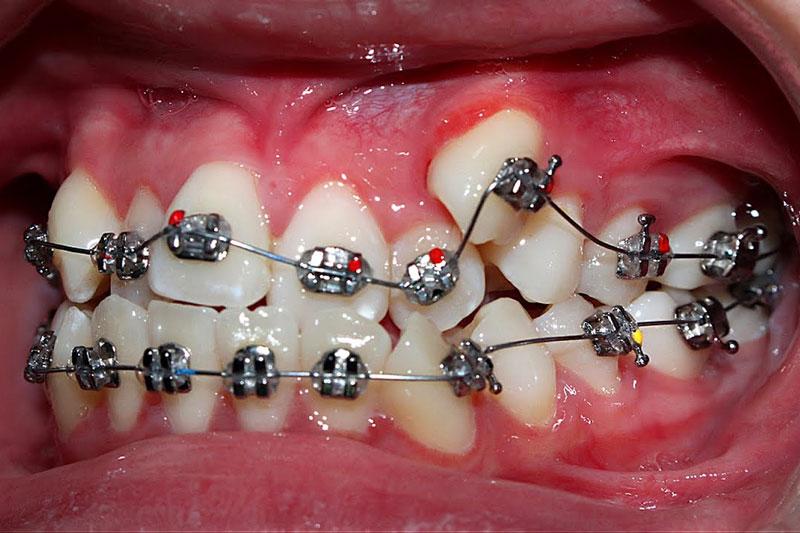 Niềng răng khểnh để đảm bảo khả năng ăn nhai và thẩm mỹ