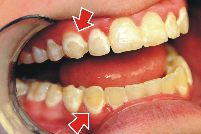 Răng trẻ em có đốm trắng là bệnh gì?