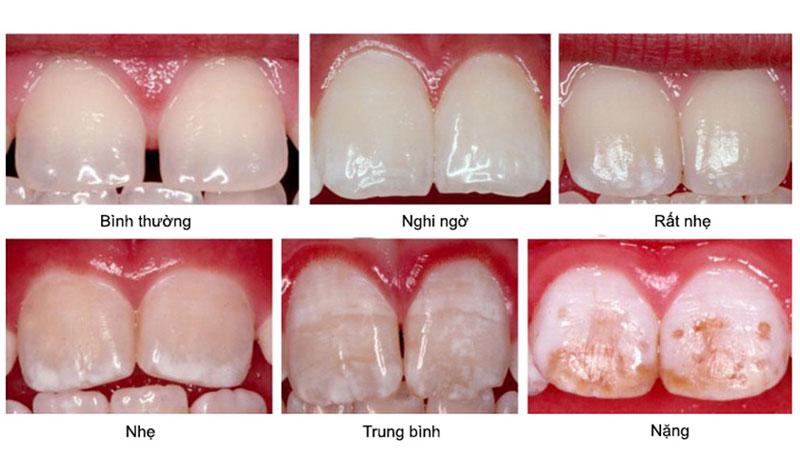 Các giai đoạn của tình trạng thừa Fluor