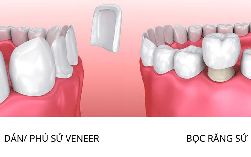 Giải pháp thẩm mỹ khắc phục răng bị đốm trắng