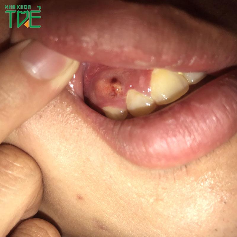Sưng chân răng: Nguyên nhân và giải pháp điều trị hiệu quả