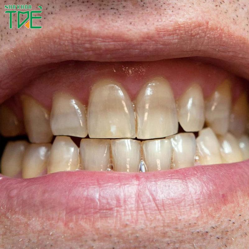 Tẩy trắng răng nhiễm kháng sinh được không?