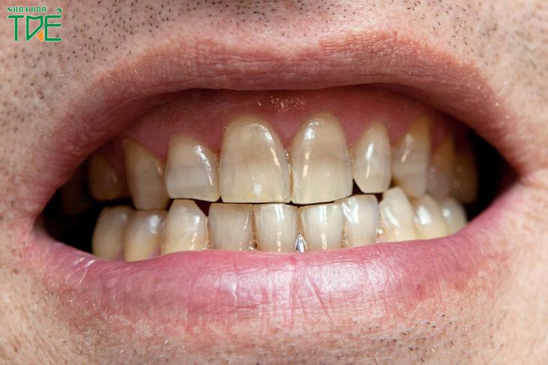 Răng nhiễm kháng sinh gây mất thẩm mỹ