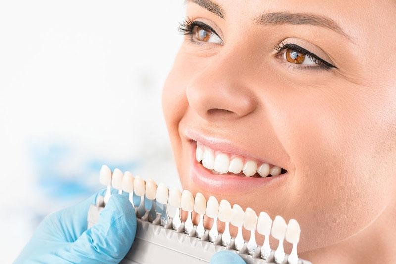 Lựa chọn màu răng sứ phù hợp để đạt tính thẩm mỹ cao