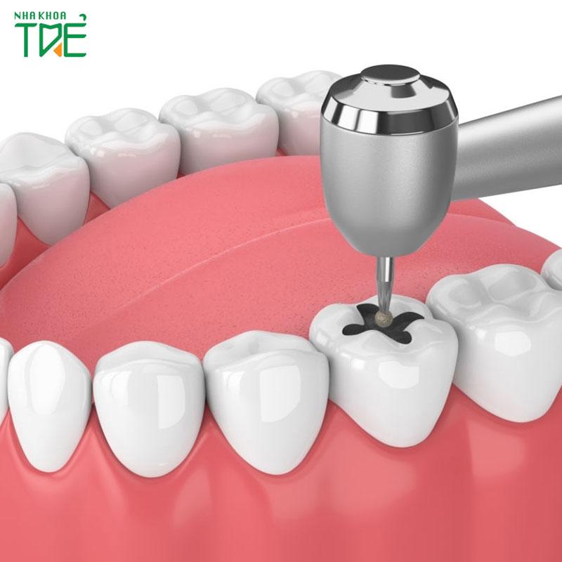 Trám răng bao lâu thì xong?
