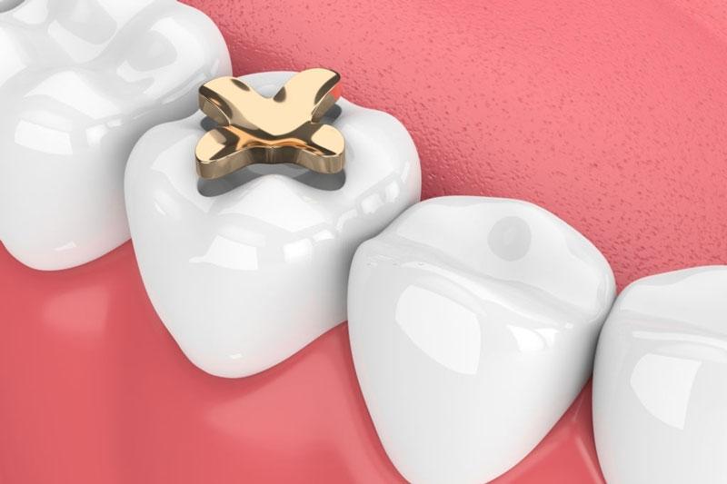 Phương pháp trám răng gián tiếp