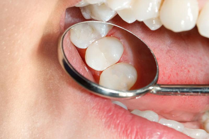 Trám răng Composite đảm bảo thẩm mỹ cao hơn