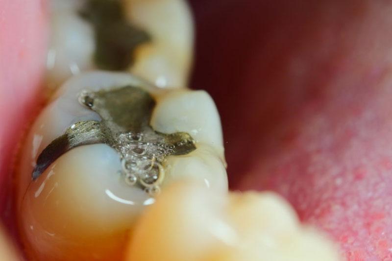 Trám kín lỗ sâu răng để ngăn ngừa vi khuẩn phát triển