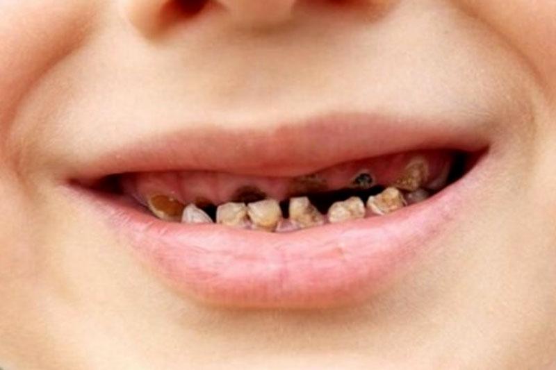Nhổ răng khi răng đã bị sâu nghiêm trọng