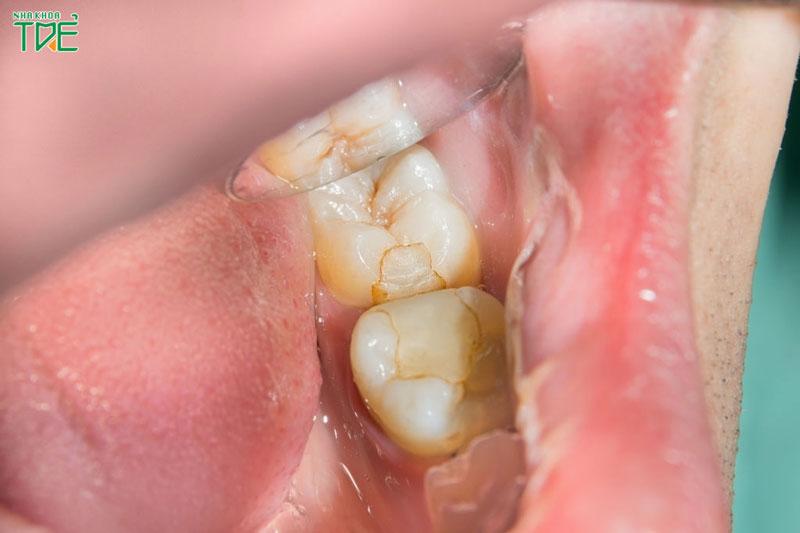 Trám răng có phải lấy tủy răng không?