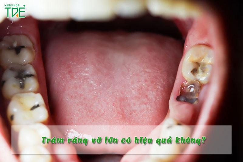 Trám răng vỡ có hiệu quả không?