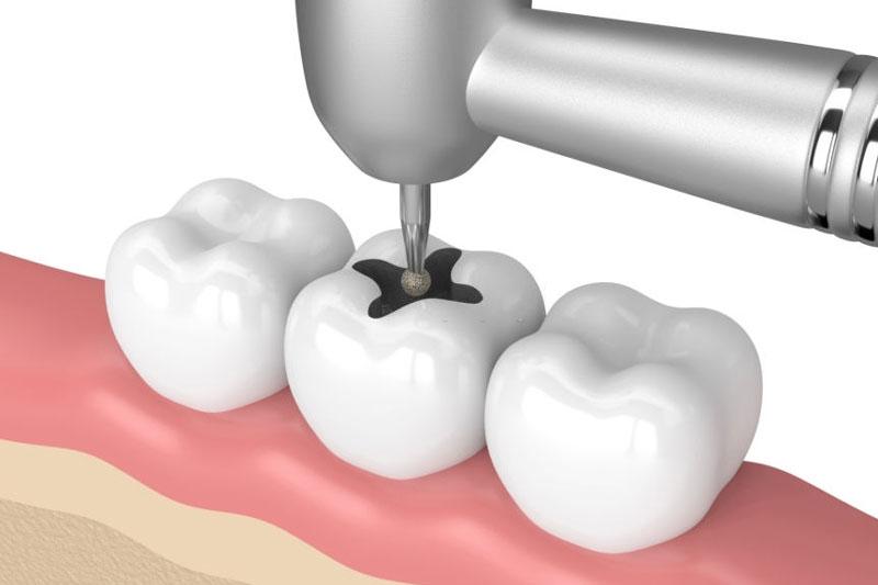 Trám răng tái tạo hình dáng và cấu trúc của răng