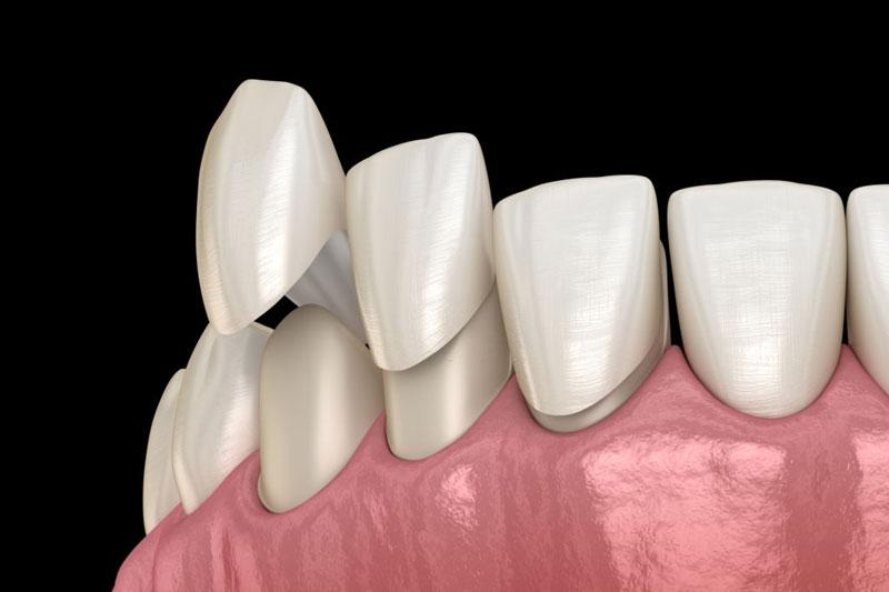 Bọc răng sứ giúp phục hình răng vỡ hiệu quả