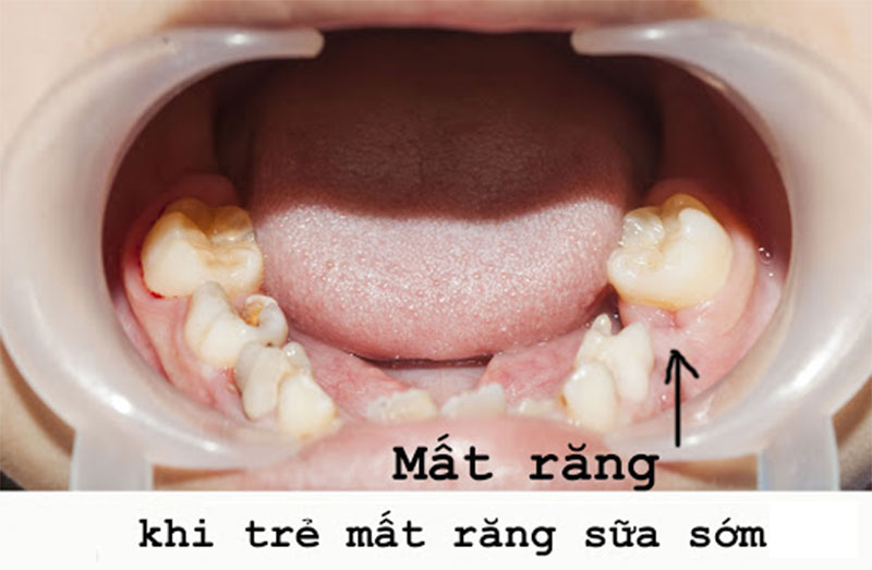 Sâu răng nghiêm trọng có thể làm mất răng sữa sớm